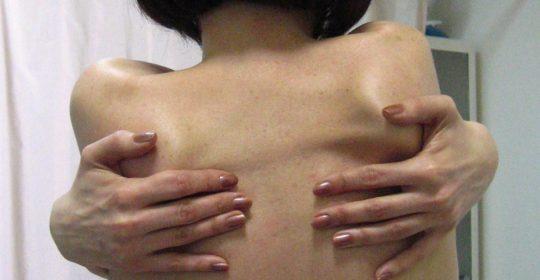Jak rozpoznać hipermobilność? Metody diagnostyczne.