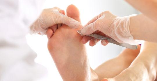 Rodzaje chorób dermatologicznych skóry stóp i paznokci – cz.2