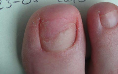 Rodzaje chorób dermatologicznych skóry stóp i paznokci – cz.1