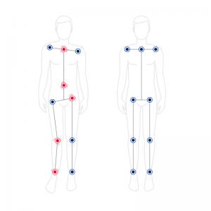 Asymetria_długości_kończyn
